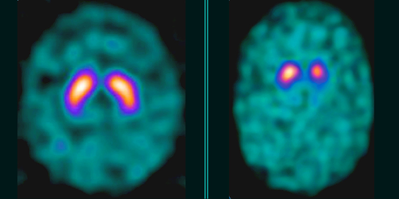 Comparison scans of Parkinson's patient's brain with typical brain